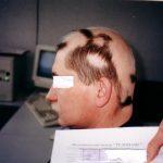 Лечение алопеции (облысения) и выпадения волос